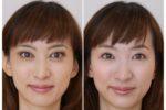 「歯科医師による黄金比メイク体験リポート・親しみメイク編」